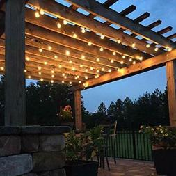19.69ft Globe String Lights for Patios, Parties, Weddings, 2